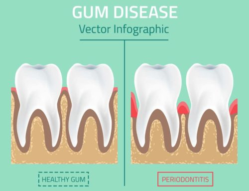 Gum (Periodontal) Disease